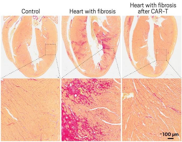 09736-scicon1-fibrosis.jpg