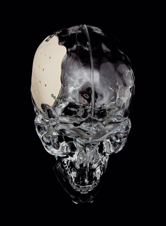 09746-feature1-skull.jpg