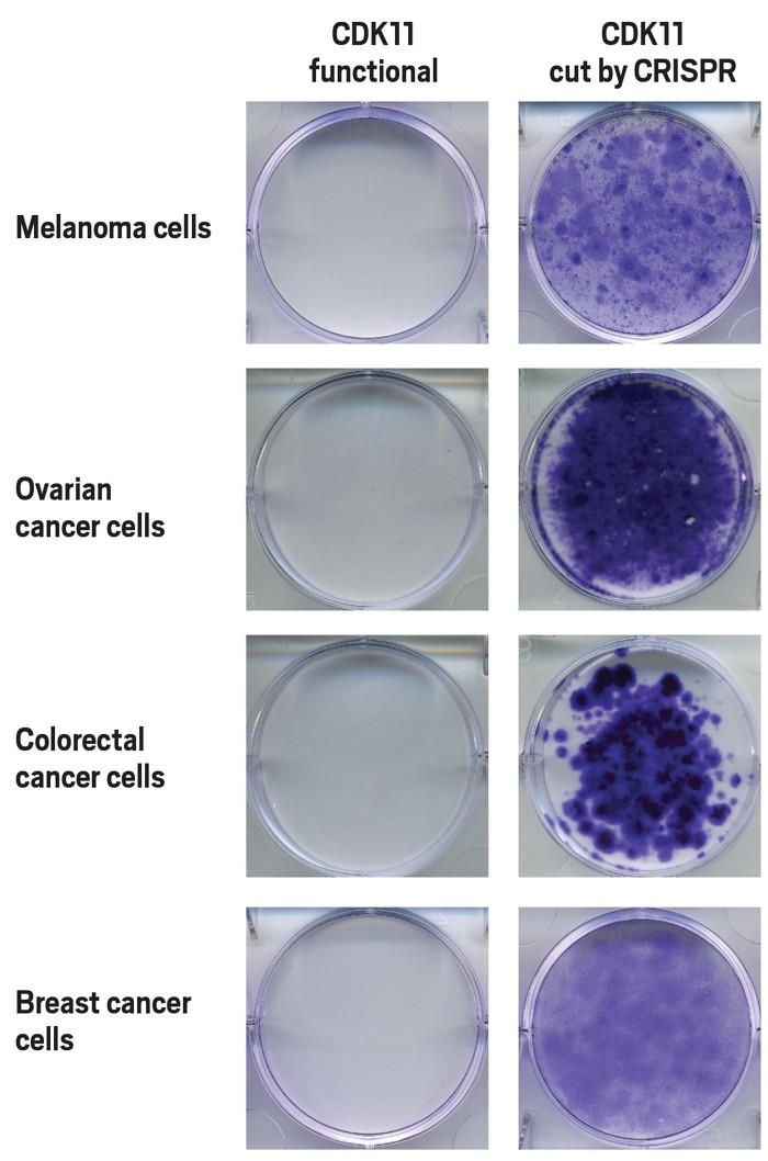 20190916lnp1-cancercells.jpg